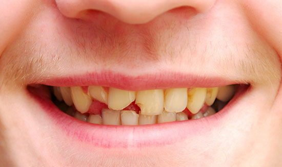 Broken Tooth and Fillings