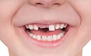 dentist_for_kids_maroubra