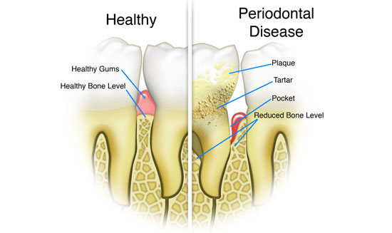 gum-disease-2