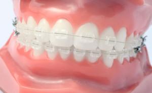 orthodontist_maroubra