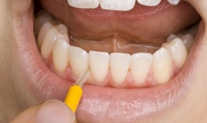 preventive-dentist-maroubra