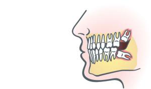 wisdom-tooth-2